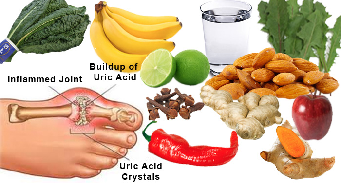 diet for severe gout can high uric acid cause leg cramps what over the counter pills work for gout
