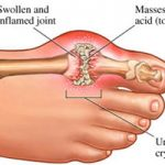 Gout And Inflammation