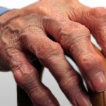 What Is Arthritis? Causes Of Arthritis