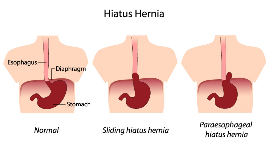 Lack Of Fiber, Hiatal Hernia, And Increased Acid Reflux