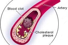 What is Cholesterol? Cholesterol Benefits