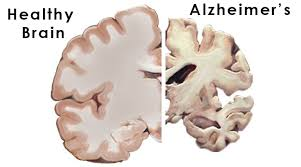 Atherosclerosis Of The Brain And Its Role Alzheimer's Disease