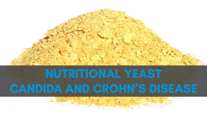 Nutritional Yeast Is A Trigger For Crohn's Disease